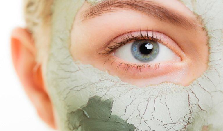 Ocho remedios caseros contra el acné que quizás no conocías